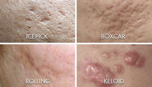 Acne scarring blog